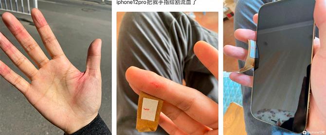 Владельцы iPhone 12 пожаловались на порезы от нового корпуса (фото 1)
